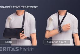 Treating proximal humerus fractures