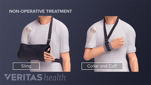 humeral fracture sonsurgical treatment