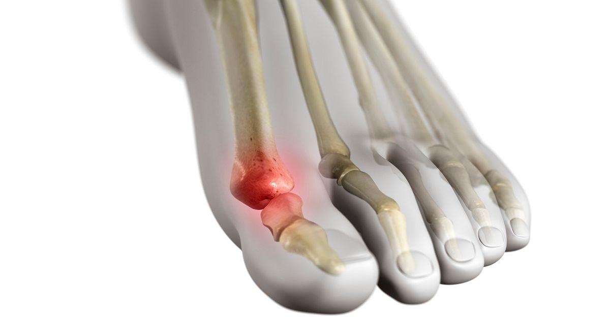 Juvenile Arthritis Drug Treatments