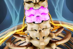 The spinal disc at the C4-C5 level of the cervical spine is quite susceptible to damage.