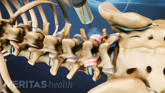 Facet Joint Injection Procedure Video