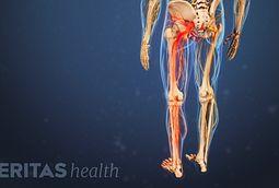la anatomía del nervio ciático
