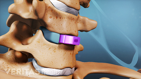 cage bone graft insertion.