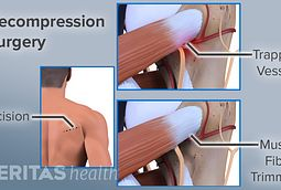 Decompression Surgery Risks Complications Results