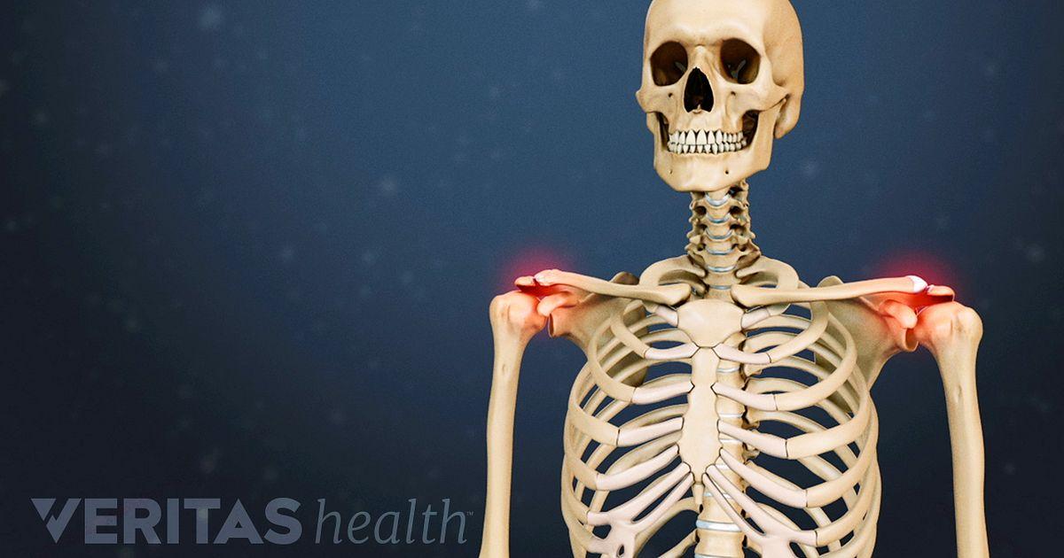Osteoartrita acromioclaviculara
