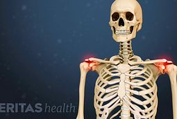 Osteoarthritis Symptoms and Signs