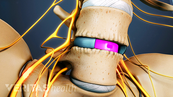ALIF (Anterior Lumbar Interbody Fusion) Video