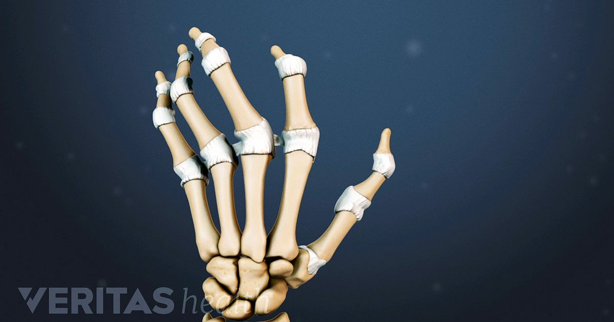 Hand Rheumatoid Arthritis Signs And Symptoms