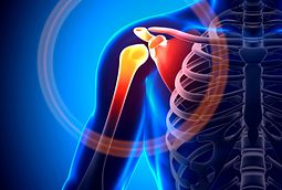 Shoulder bursitis causes