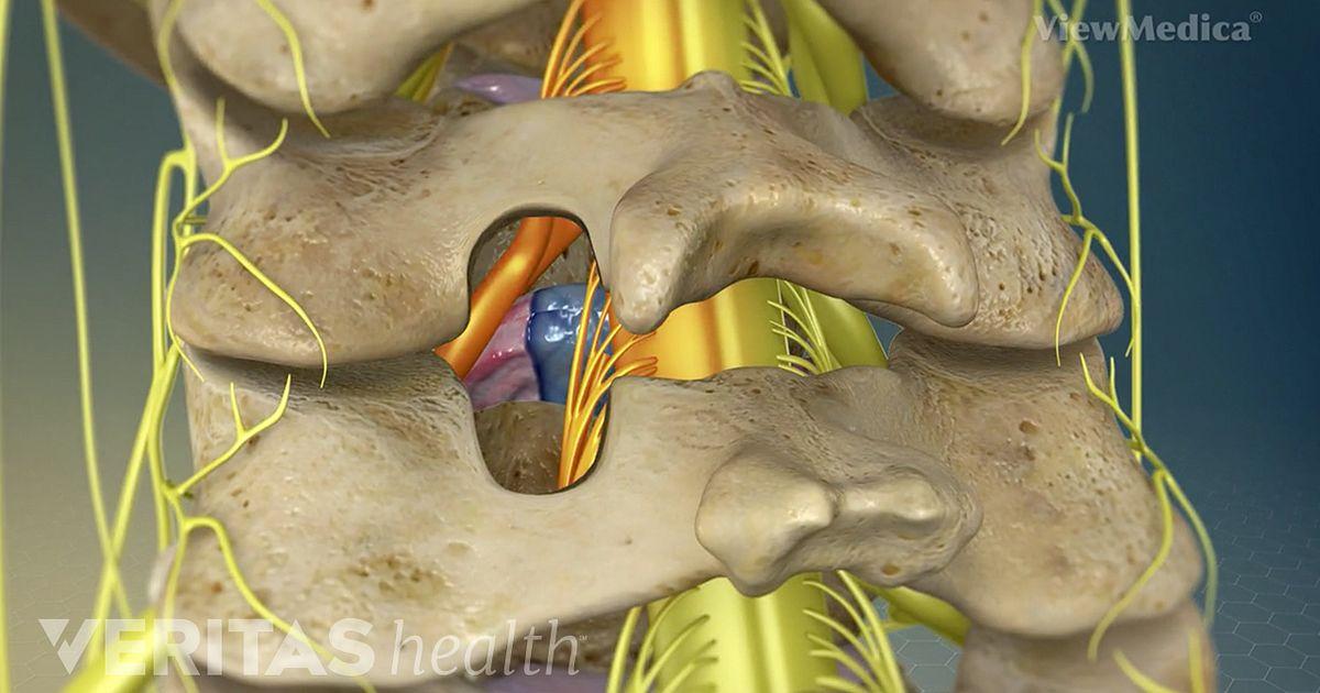 Cervical Posterior Foraminotomy Video