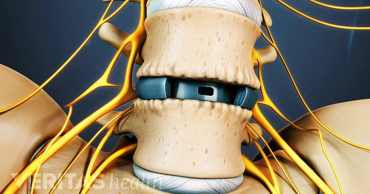 posterior cervical laminectomy and fusion recovery time