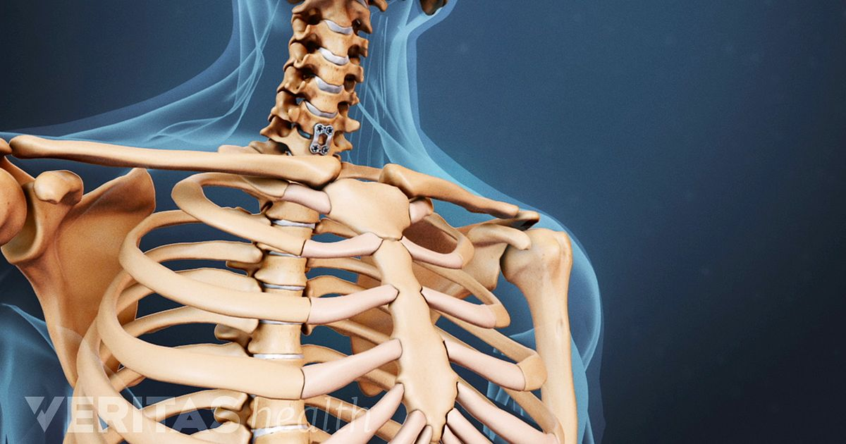 Spinal Cord Compression And Dysfunction From Cervical Stenosis