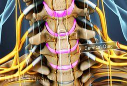 la discopatía degenerativa cervical