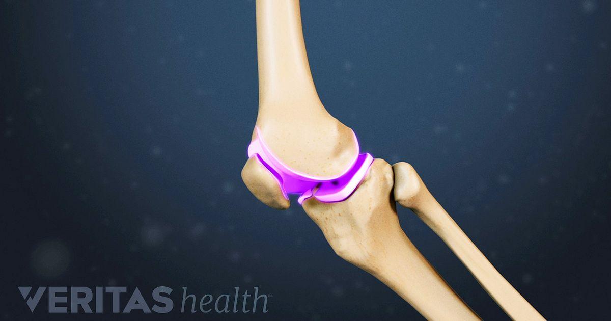 Knee Osteoarthritis Video Arthritis Health