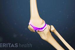 knee motion