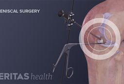 Knee Surgery for a Torn Meniscus