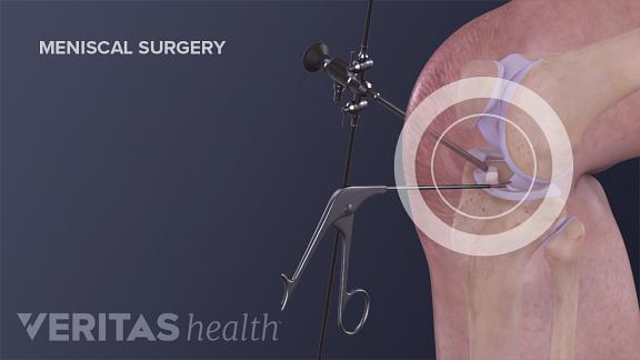 meniscal surgery