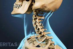 torceduras y esguinces de cuello