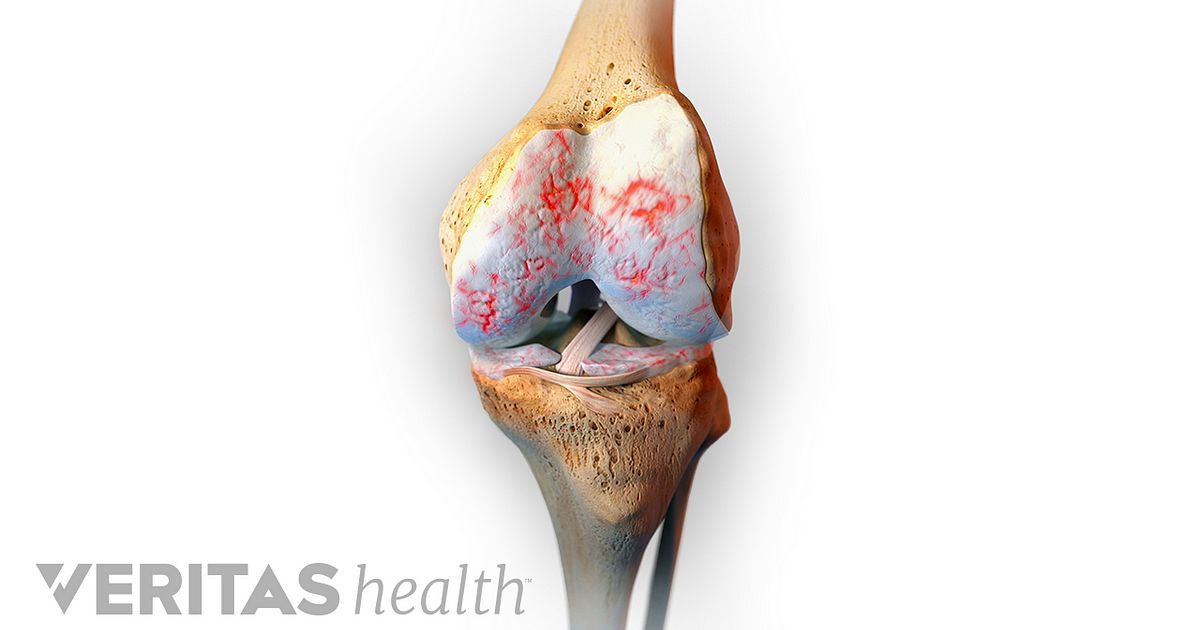What is the best diet for osteoarthritis?