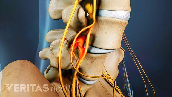 Spondylosis Video