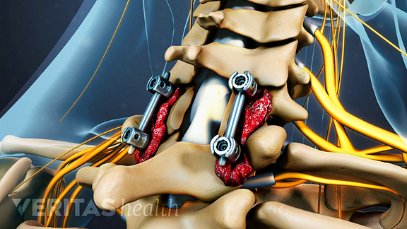 cervical laminectomy fusion surgery