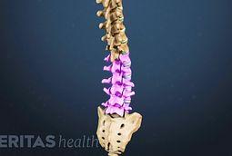 back surgery