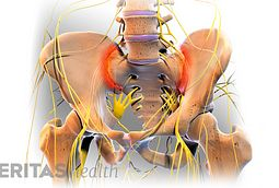 Sacroiliac Joint Injection Side Effects And Risks