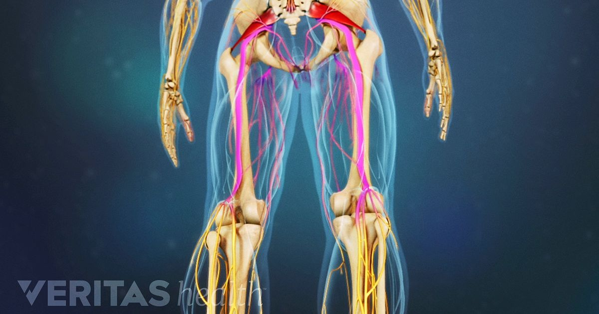 What Piriformis Syndrome on muscle pain location diagram