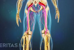 Sciatica commonly features radiating pain—which is searing or sharp—that moves along the path of the sciatic nerve.