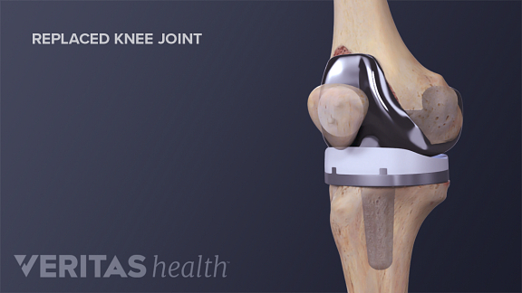 replaced knee joint