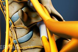 retrolisthesis and emedicine Spondylolisthesis can be a painful condition affecting the back caused by a vertebrae from the lower spine slipping out of position.