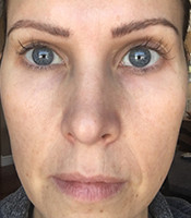 Claire-FullFace-After3Days