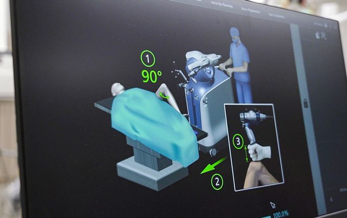 Robotic surgery at Longmont United Hospital