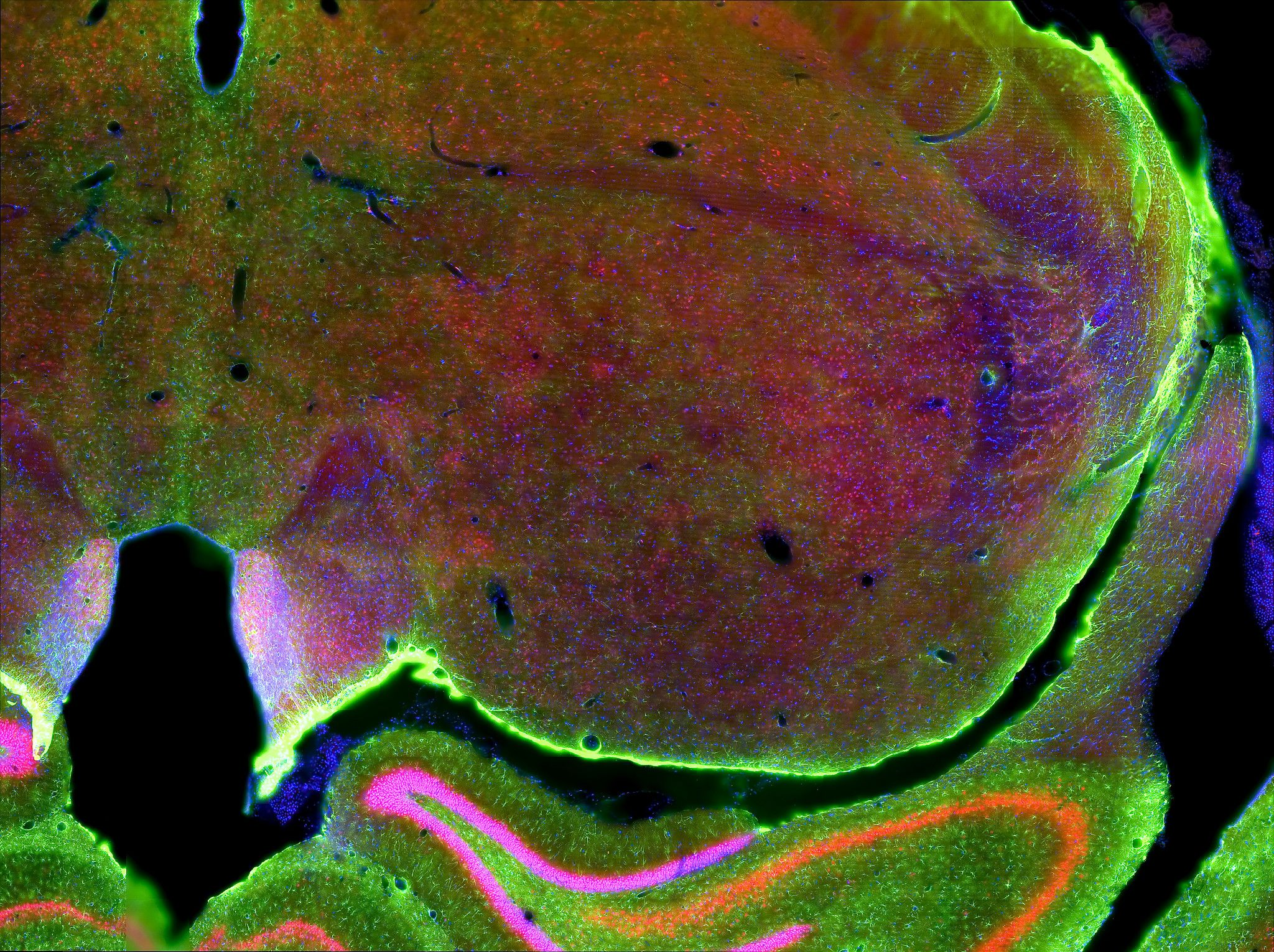 Fluorescence view of rat brain slice used in Alzheimer's Disease Research Studies.