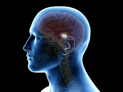 Image of a transparent human head with a brain inside and the mid-brain highlighted to indicate Parkinson's disease pathology.