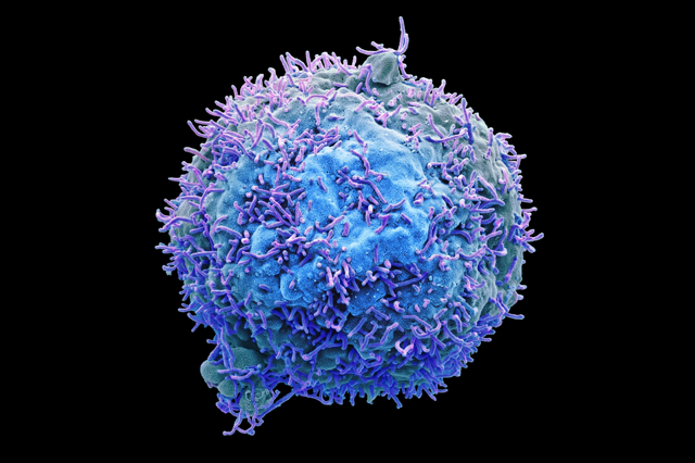 Cancer cell.