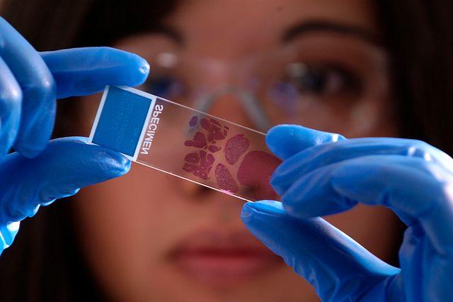 Pathologist examining histopathology slide