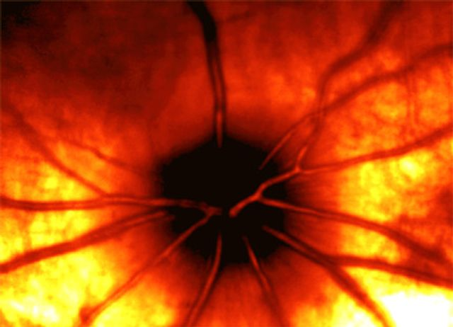 optical coherence tomography image of an eye from an ocular toxicology study.