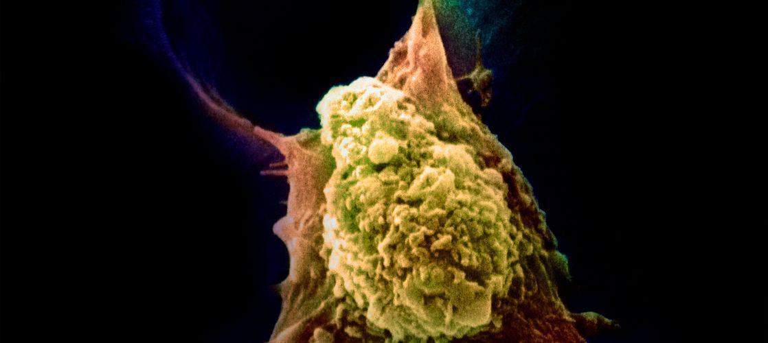 Metastasis of cancerous cell.jpg