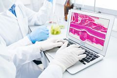 scientist in PPE typing on laptop, with screen showing ditial pathology image