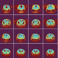 Preclinical Imaging: A Translational Approach to Assess New Cancer Treatments