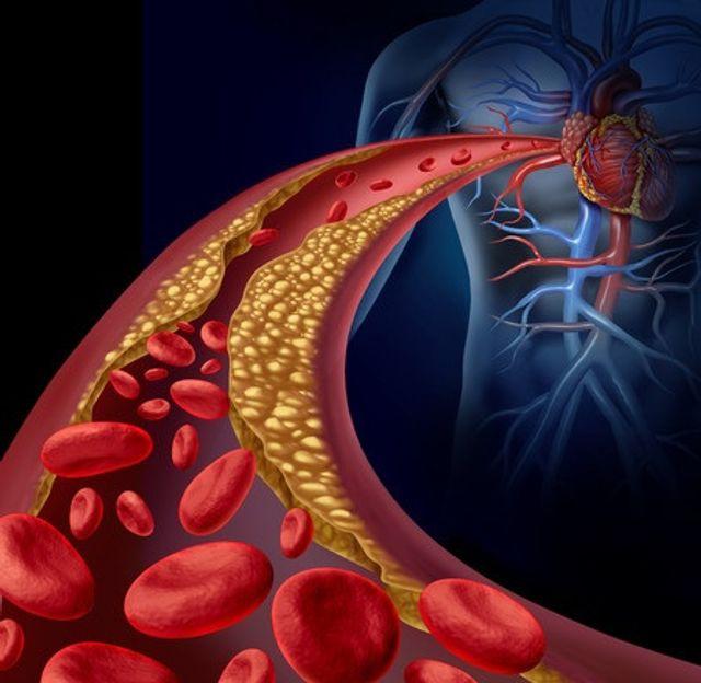 Blood_Cells_Arteries_Blocked