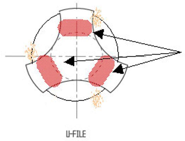 K3NitiFiles-Figure14-Overview_StressestoBlade