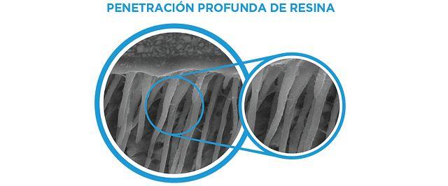 OptiBond XTR: Deep Resin penetration