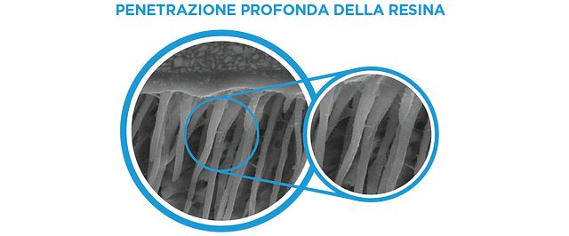 OptiBond XTR: Deep Resin penetration