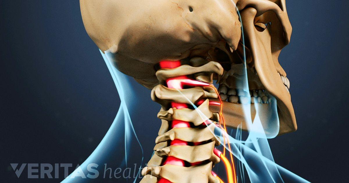 dolor en el lateral derecho del cuello