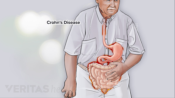 Illustration of person with abdominal pain due to ulcerative colitis
