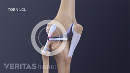 Anterior view of the knee joint with torn LCL and MCL