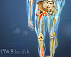 Posterior view of the legs with pain radiating in the left leg