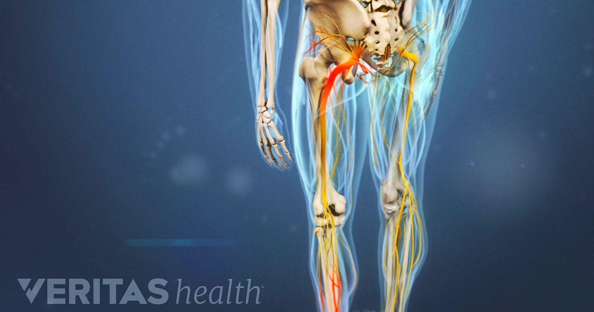 Herniated Disc Leg Pain Diagram - House Wiring Diagram Symbols •